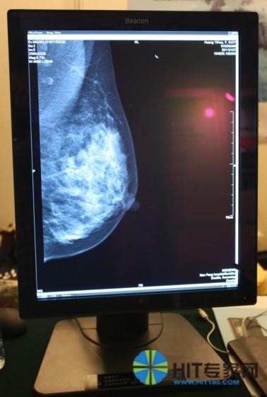 日系厂家纷纷抢进3D高清医用显示市场