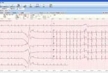 心电信息系统进入数据挖掘阶段