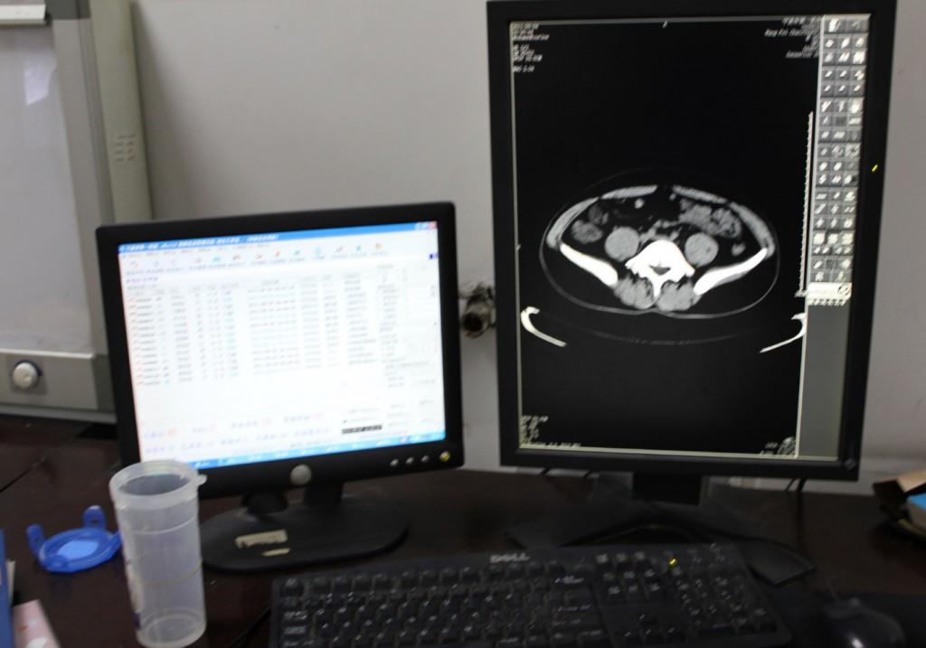放射科医生工作站一般要求支持双屏显示。