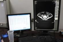 """医院影像中心的""""最佳拍档"""":关于RIS、PACS以及WS"""